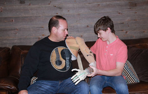 Fine 3D-prints prosthetics for amputees